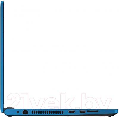 Ноутбук Dell Inspiron 15 (5555-9198)