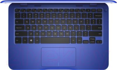 Ноутбук Dell Inspiron 11 (3162-6163) 272680111