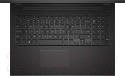 Ноутбук Dell 3541-2537 - вид сверху