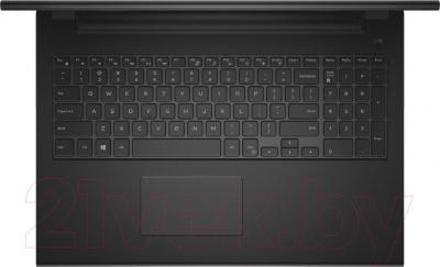 Ноутбук Dell Inspiron 15 (3542) (3542-2414) - вид севрху